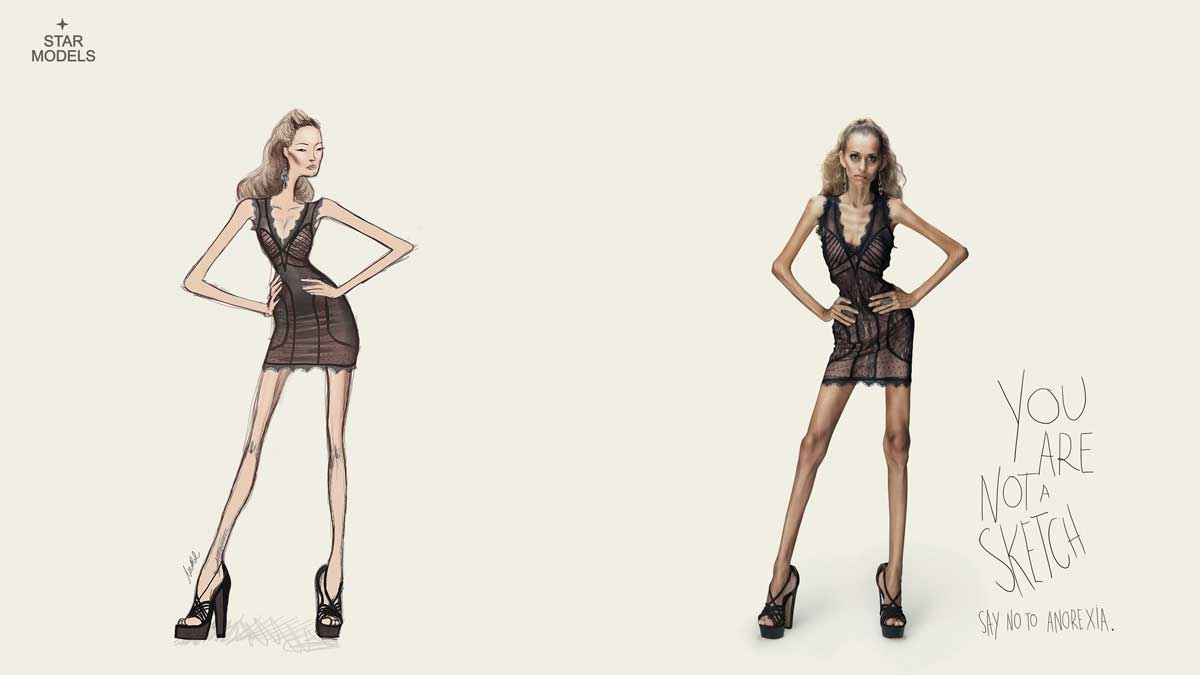 campanha star models contra a anorexia